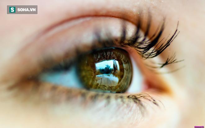 Cảnh báo: Người có dấu hiệu này ở mắt có thể sắp đột quỵ - Ảnh 3.
