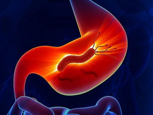 Vi Khuẩn HP là một yếu tố ngoại sinh gây ung thư dạ dày.
