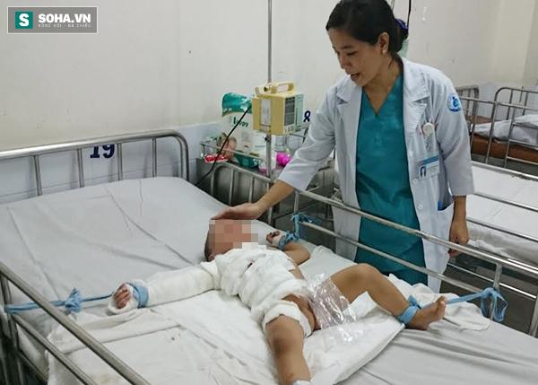 BS Thúy chăm sóc cho bé N.V.Q.D (SN 2015), bé bị phỏng nước sôi khi tự với tay lấy bình giữ nhiệt.