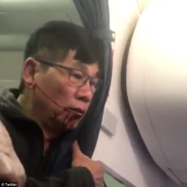 Người đàn ông được xác nhận là ông David Dao, một bác sĩ người Mỹ gốc Việt.
