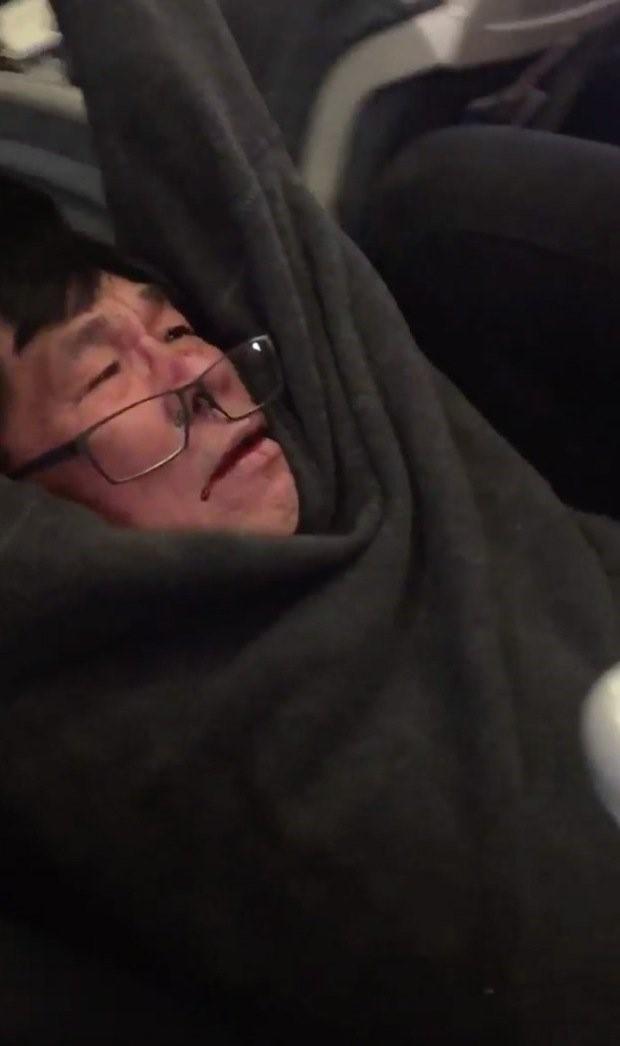 Bác sĩ gốc Việt bị lôi khỏi máy bay trong tình trạng chấn thương .