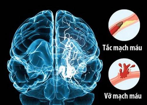 Xơ vữa mạch máu, huyết khối gây bít tắc lòng mạch đều có thể gây tai biến mạch máu não.