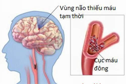 Thiếu máu não cục bộ tạm thời có thể bị nhầm với cơn đau nửa đầu.