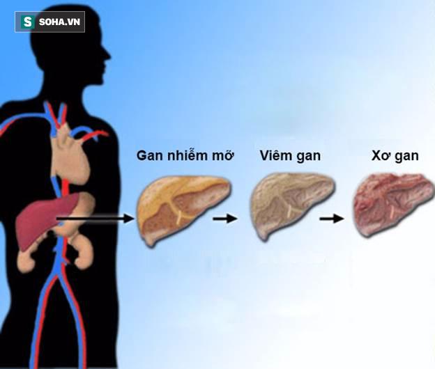Các giai đoạn phát triển của bệnh gan nhiễm mỡ.