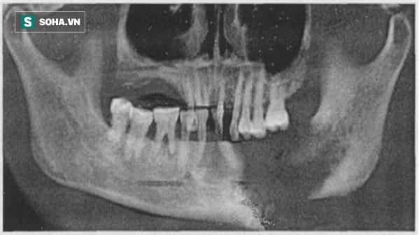 Hình ảnh chụp hàm răng của nam thanh niên khiến anh vô cùng tiếc nuối và sợ hãi.