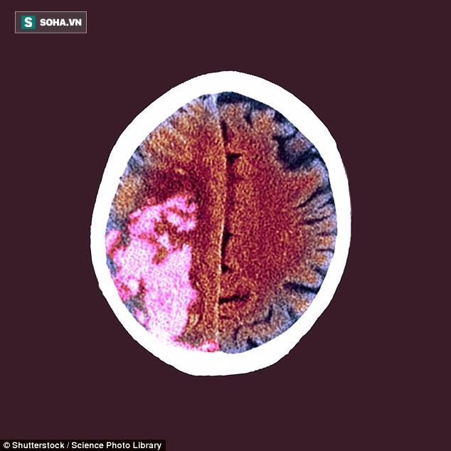 Các nhà khoa học cho rằng bệnh đột quỵ kích thích phát triển khối u.