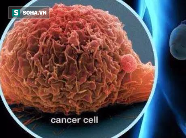 Bác sĩ tiến hành soi bàng quang và sinh thiết phát hiện đó là khối u ác tính.