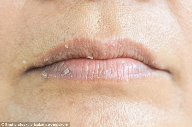 Các vết nứt khó chịu nhỏ ở khóe môi là dấu hiệu của tình trạng thiếu vitamin B đặc biệt là vitamin B6.