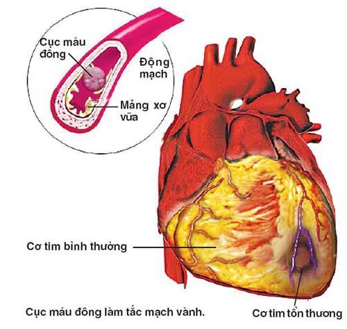 Cục máu đông đã được hình thành trong buồng tim, nguy cơ nó có thể bong ra, xuống tâm thất trái, vào vòng đại tuần hoàn gây tắc mạch là rất lớn.