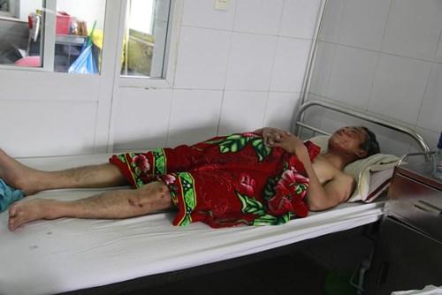 Anh Nguyễn Văn Thanh, đội trưởng đội thi công bị chấn thương, xây xát nặng ở vùng mặt, chân. Hiện đang điều trị tại bệnh viện Đa khoa Đà Nẵng. Ảnh: Thanh Trần.