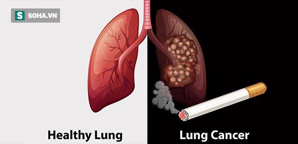 Thuốc lá là tác nhân nguy hiểm gây ung thư phổi (Ảnh minh họa)