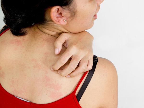 Da ngứa: Cơ thể coi ung thư như là một loại vi khuẩn, vì vậy hệ thống miễn dịch của bạn sẽ bắt đầu phải chiến đấu với những tác nhân gây bệnh. Điều này sẽ làm tăng lưu lượng máu tới vùng da bị bệnh khiến da bạn nhạy cảm hơn và dễ ngứa ngáy hơn.