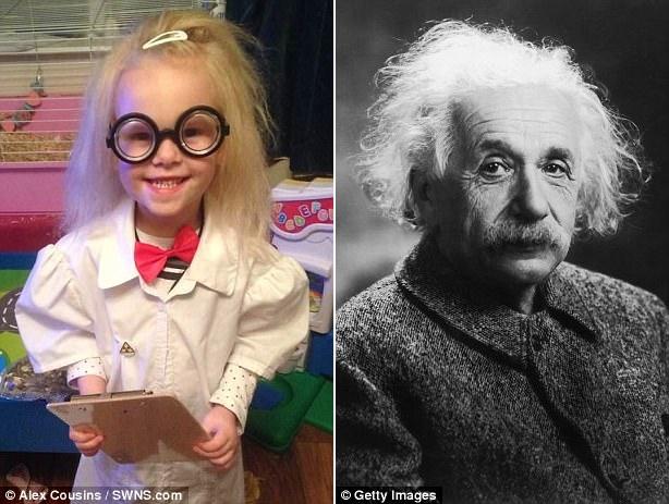 Cô bé mắc hội chứng tóc chổi rơm giống nhà bác học Einstein.