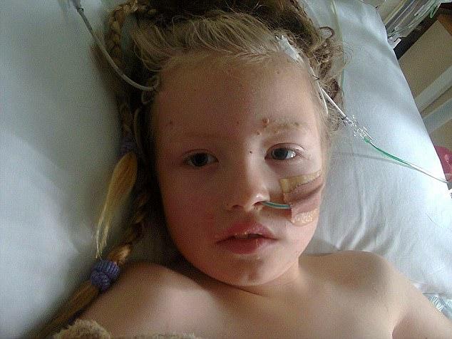 Chỉ từ những nốt phát ban của bệnh thủy đậu, cô bé đã bị biến chứng thành viêm màng não.