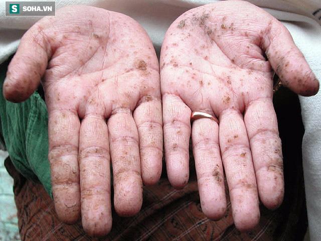 Một trong những triệu chứng của cơ thể bị tích tụ kim loại nặng.