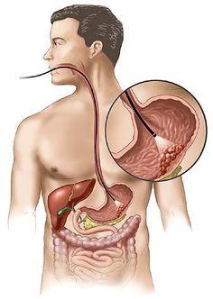 Tiến hành kiểm tra dạ dày định kỳ là một trong những cách giúp bạn phòng ngừa hoặc sớm phát hiện các bệnh lý về cơ quan này. (Hình minh họa).