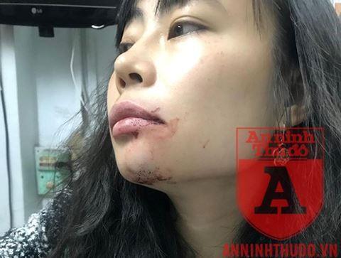 Vết thương của chị Linh sau khi bị lái xe Uber hành hung