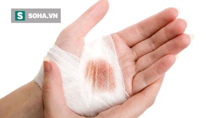 Vết thương lâu lành, dễ nhiễm trùng cũng là một trong những biểu hiện phản ánh sự bất thường về gan. (Ảnh minh họa).