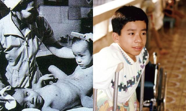 Nguyễn Đức trước và sau khi được phẫu thuật tách rời khỏi anh trai song sinh.