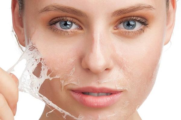 Việc cơ thể bài tiết chậm chạp làm lưu cữu chất độc trên da là tác hại rõ rệt của tình trạng suy giảm hệ miễn dịch. (Ảnh: Internet)
