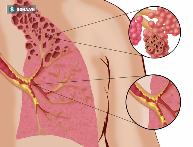 Thuốc lá gây tác hại cho phổi vô cùng lớn, hãy ngừng hút thuốc càng sớm càng tốt (Ảnh minh họa)