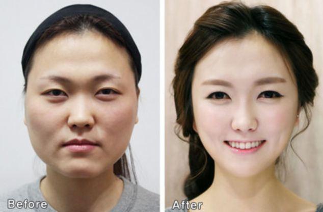Các cô cứ phẫu thuật thẩm mỹ và công khai đi chứ đừng nói là mình đẹp tự nhiên, nghe không hợp lý chút nào.