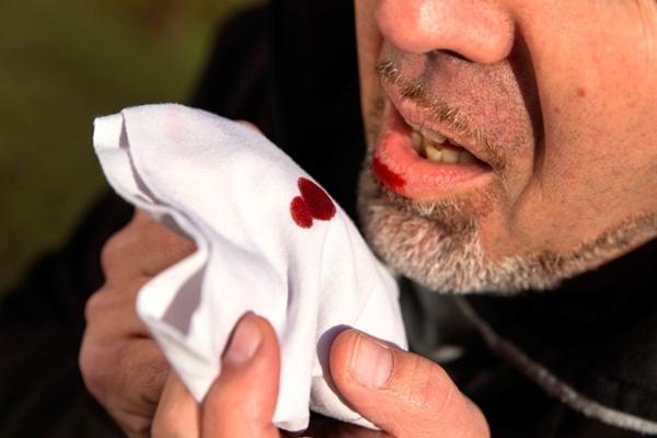 Ho ra máu là một trong những dấu hiệu thầm lặng có thể giết chết màng lọc trong cơ thể bạn.
