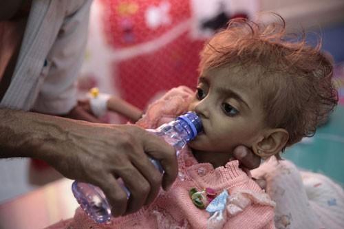 Nạn đói thế kỷ ở Yemen - Ảnh 1.