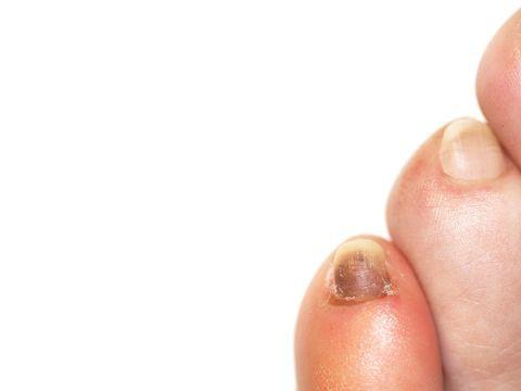 Đừng chủ quan khi móng chân có màu bất thường, 4 màu sắc dưới đây có thể tiết lộ sức khỏe của bạn - Ảnh 1.