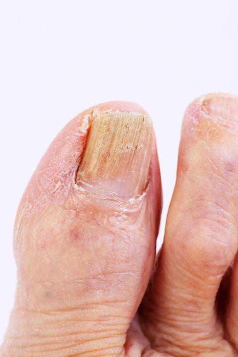 Đừng chủ quan khi móng chân có màu bất thường, 4 màu sắc dưới đây có thể tiết lộ sức khỏe của bạn - Ảnh 2.