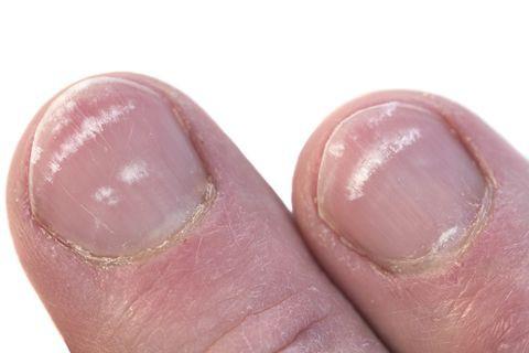 Đừng chủ quan khi móng chân có màu bất thường, 4 màu sắc dưới đây có thể tiết lộ sức khỏe của bạn - Ảnh 3.