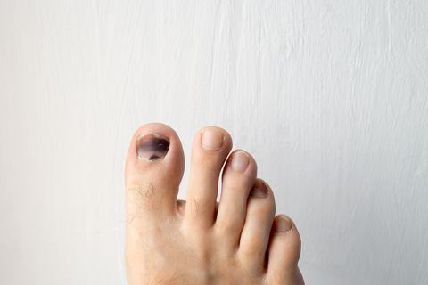 Đừng chủ quan khi móng chân có màu bất thường, 4 màu sắc dưới đây có thể tiết lộ sức khỏe của bạn - Ảnh 4.
