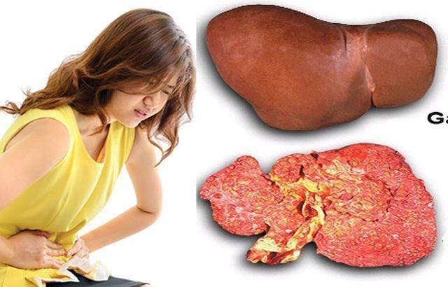 Bé 4 tuổi gan đã nhiễm mỡ vàng óng do ăn loại thức ăn quen thuộc - Ảnh 1.