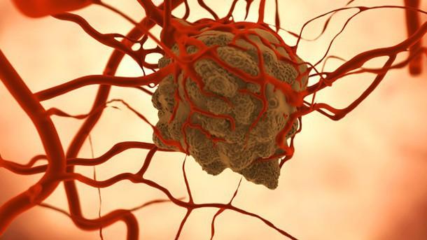 Nghiên cứu: Xạ trị ung thư sẽ hiệu quả hơn nếu kết hợp một loại thuốc giãn cơ 150 năm tuổi - Ảnh 1.