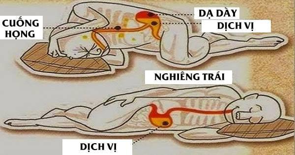 Chuyên gia Tiêu hóa BV Bạch Mai chia sẻ tư thế ngủ tốt cho dạ dày, tránh trào ngược - Ảnh 2.