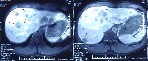 Đau âm ỉ vùng thượng vị, không phải đau dạ dày mà có thể là căn bệnh ung thư cực hiếm gặp - Ảnh 2.