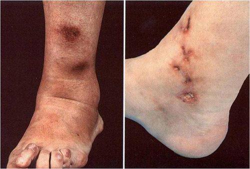 Ngón tay và ngón chân của người ông này bỗng chuyển sang màu đen sì - dấu hiệu cảnh báo bệnh nguy hiểm - Ảnh 5.