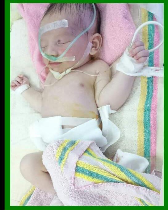 Con trai mới 6 tháng tuổi đã 5 lần phẫu thuật, bà mẹ trẻ cảnh tỉnh trào lưu anti vắc xin - Ảnh 1.