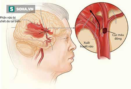 Chuyên gia tim mạch: Nhiều trường hợp bị nguy hiểm vì uống An cung ngưu hoàn phòng đột quỵ - Ảnh 2.