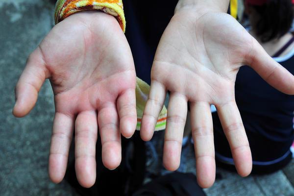 7 dấu hiệu thường gặp trên bàn tay nhưng ẩn chứa nguy cơ sức khỏe nghiêm trọng, đừng chủ quan để phải hối hận - Ảnh 1.