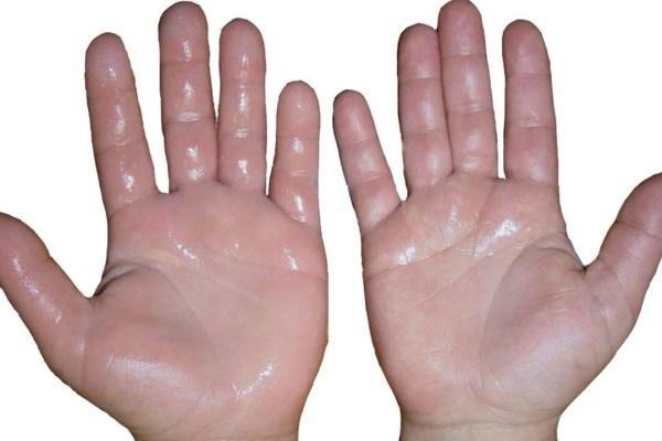 7 dấu hiệu thường gặp trên bàn tay nhưng ẩn chứa nguy cơ sức khỏe nghiêm trọng, đừng chủ quan để phải hối hận - Ảnh 2.