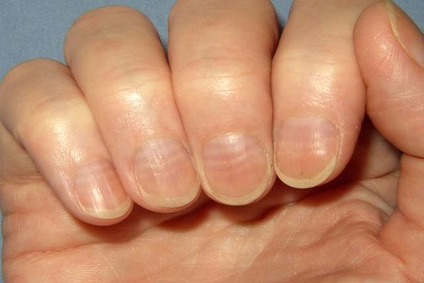 7 dấu hiệu thường gặp trên bàn tay nhưng ẩn chứa nguy cơ sức khỏe nghiêm trọng, đừng chủ quan để phải hối hận - Ảnh 6.