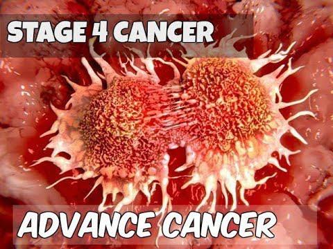 Clip cho thấy ung thư di căn phát triển như thế nào và phá hủy cơ thể người bệnh ra sao - Ảnh 3.