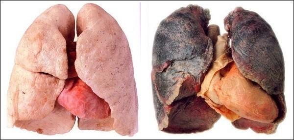 Ung thư phổi gây tử vong số 1: Những dấu hiệu cảnh báo sớm tuyệt đối không nên lờ đi - Ảnh 2.