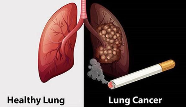 Người có 6 thói quen này có tỉ lệ mắc ung thư phổi rất cao: Hãy xem có bạn không để tránh! - Ảnh 2.
