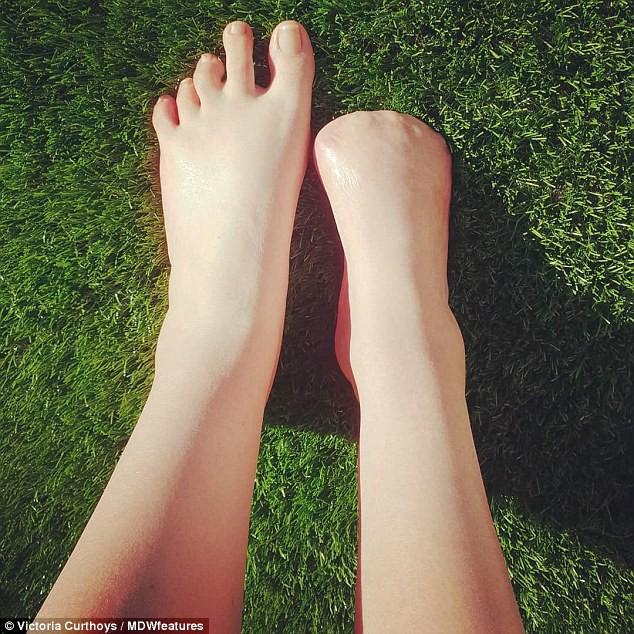 Cô gái trẻ bay mất 5 ngón chân sau khi đi spa cá rỉa - Ảnh 2.