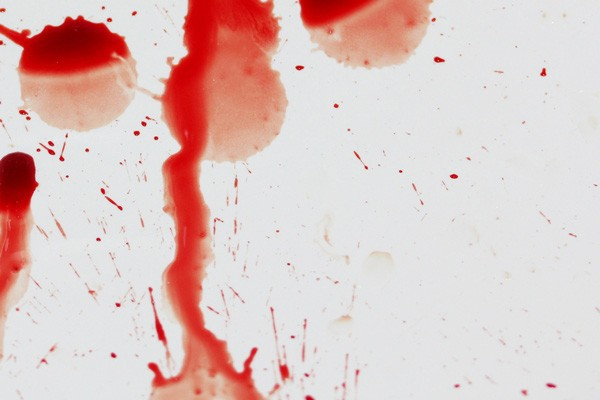 """""""Mặt nạ ma cà rồng"""": Giới chuyên gia đang khuyến cáo người sử dụng dịch vụ cần đi xét nghiệm HIV và viêm gan - Ảnh 4."""