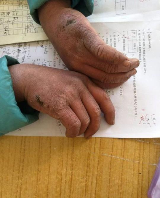 Ít ai có thể ngờ được đây là đôi tay của một cậu bé 8 tuổi. Ảnh: Weibo
