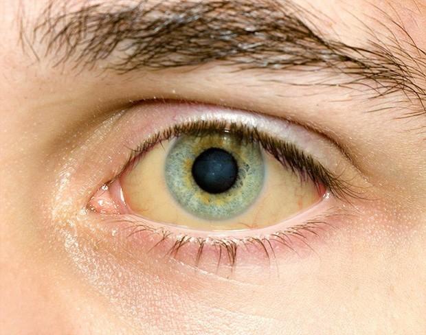 Sáng ngủ dậy thấy 5 triệu chứng này thì nhiều khả năng sức khỏe của bạn đang khá tệ - Ảnh 3.