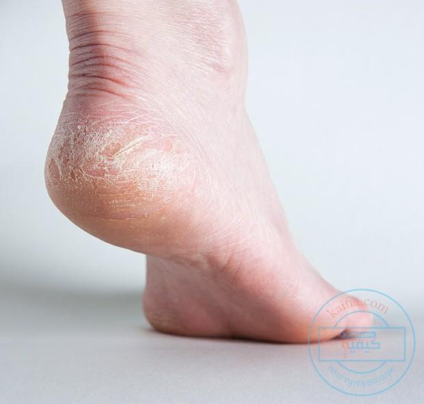 4 triệu chứng dễ thấy ở bàn chân, cảnh báo gan của bạn đang hoạt động kém - Ảnh 3.